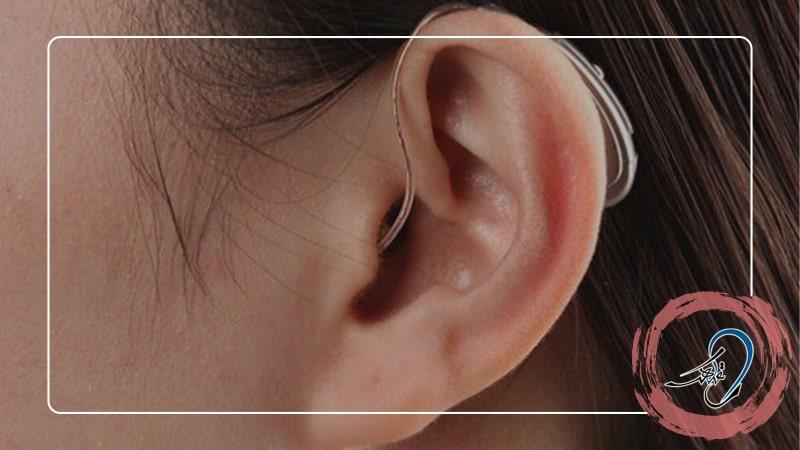چه سمعک های برای کم شنوایی حسی عصبی مناسب است ؟