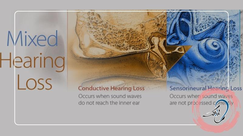 کم شنوایی آمیخته چیست؟